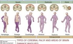 Tipe Cerebral Palsy