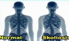Apa itu Skoliosis